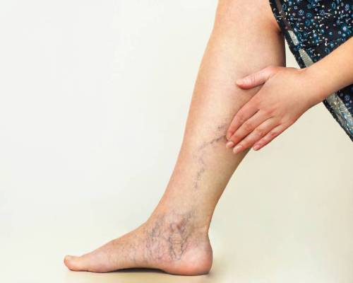 Vericose Veins Surgery In Hisar , Best Doctor For Vericose Vein Surgery in Hisar , Cost of Vericose Vein Surgery in Hisar , Hospital for Vericose Vein Surgery in Hisar